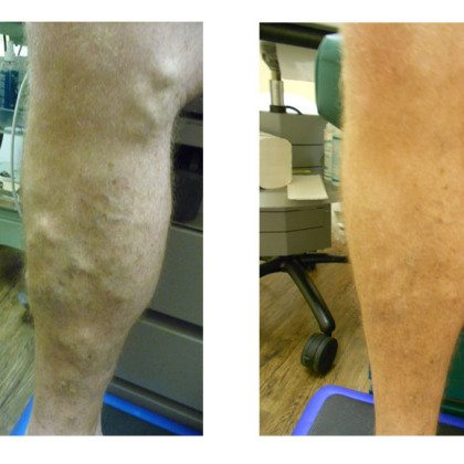 Men Get Varicose Veins Too!