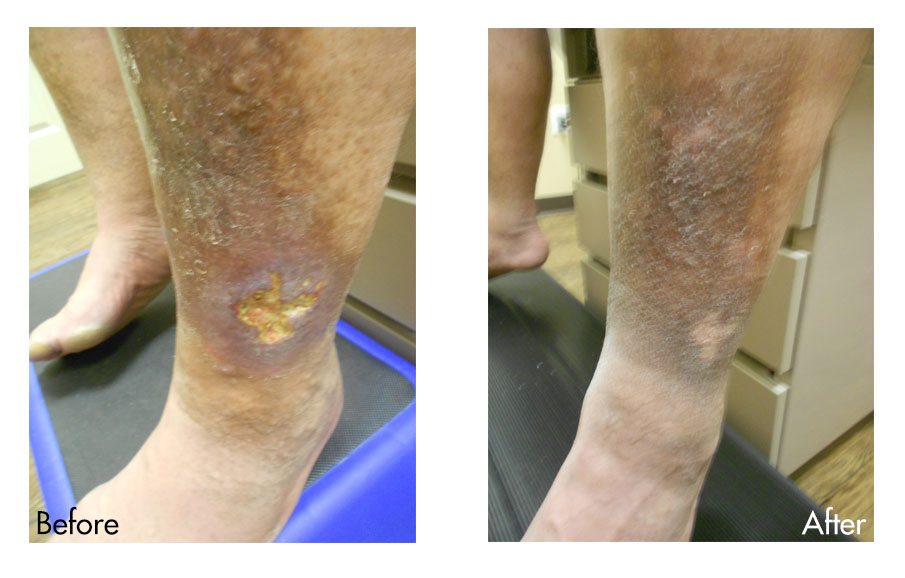Before & After Venous Ulcers