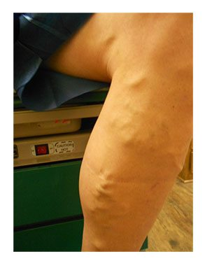 Non-surgical Varicose Vein Treatment Options