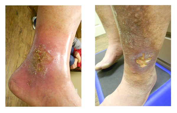 A foot and leg with venous ulcers in Houston, TX