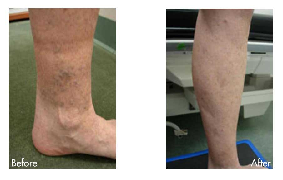 Before & After Spider Veins
