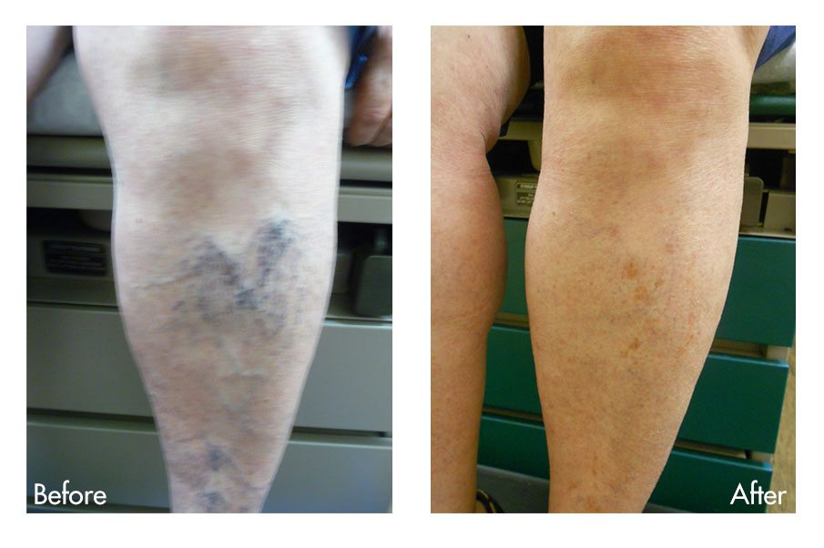 Pictures of vein condition before and after treatment at Texas Vein & Cosmetic Specialists