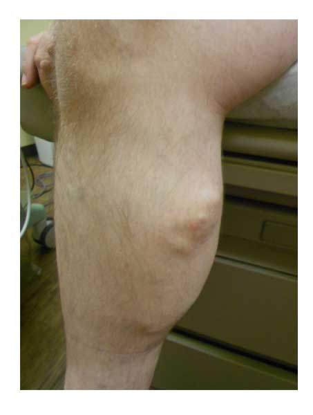 superficial thrombophlebitis in Houston, TX