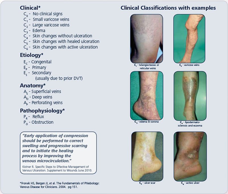 Vein Classifications