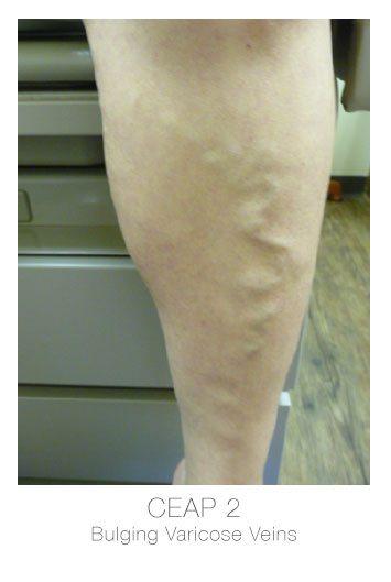 ceap2-bulging-varicose-veins