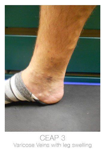 ceap3-varicose-veins-leg-swelling