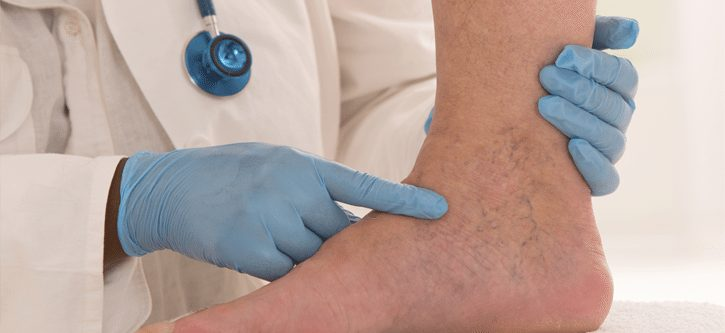 Why Have Your Veins Treated By A Board Certified Vascular Surgeon