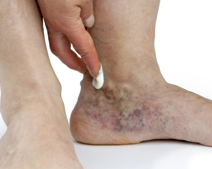 The Basics of Spider Vein Treatment