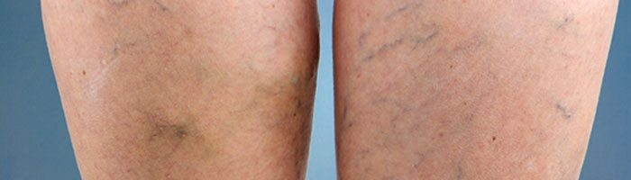 Are Spider Veins a Sign You Have Varicose Veins?