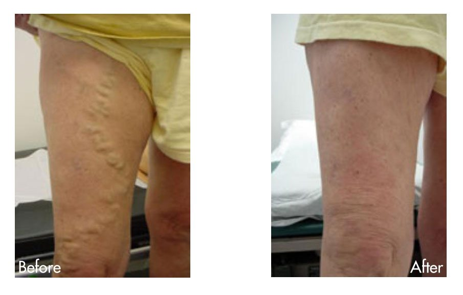 Varicose Vein Treatment Breakthrough Now Available in Houston, TX