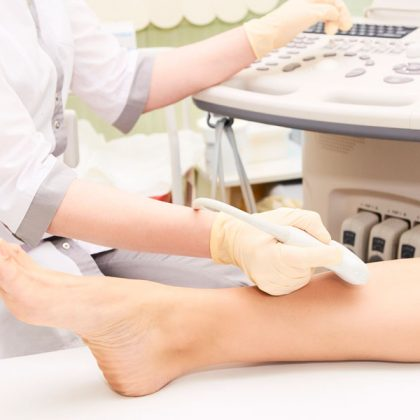 Sclerotherapy Vein Treatment